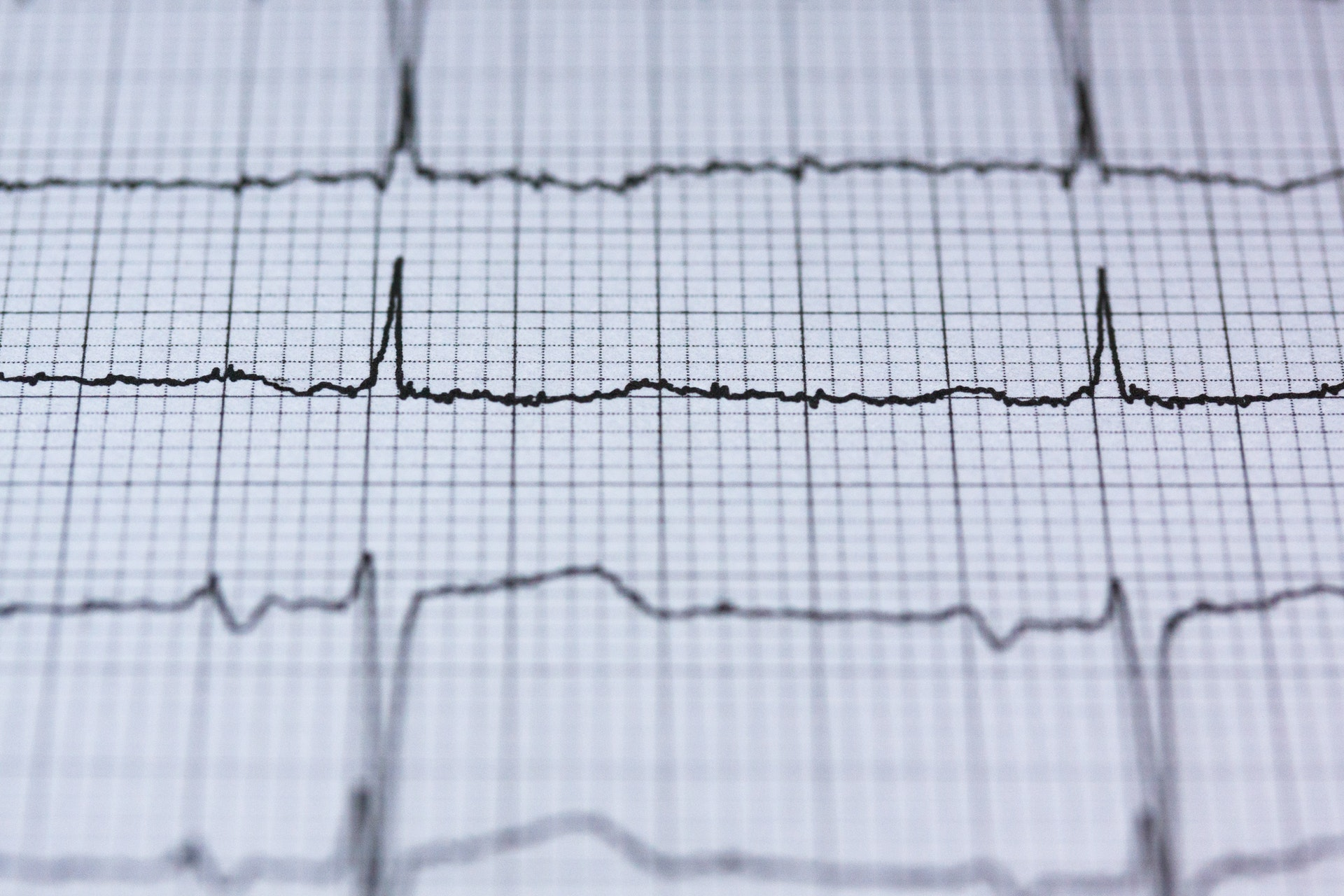 Síndrome coronario agudo con elevación del segmento S-T: fisiopatología y criterios diagnósticos