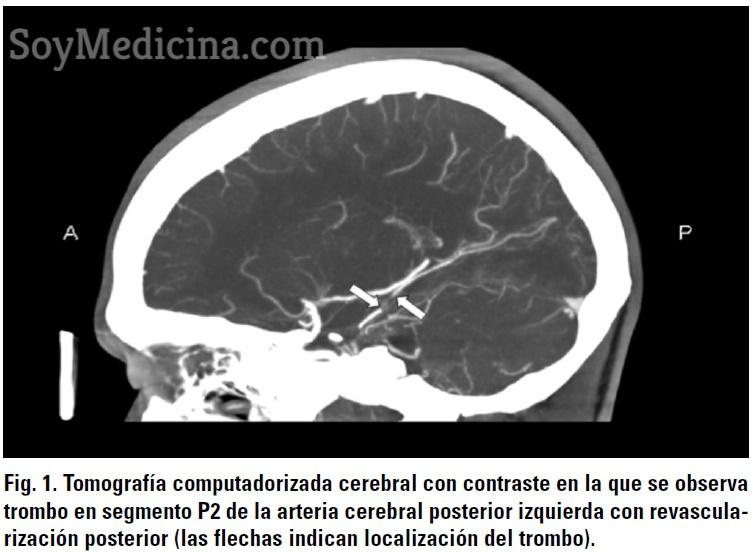 Figura 1 Sindrome Antifosfolipido