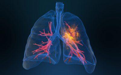 ¿Cuáles son los síntomas de cáncer de pulmón?