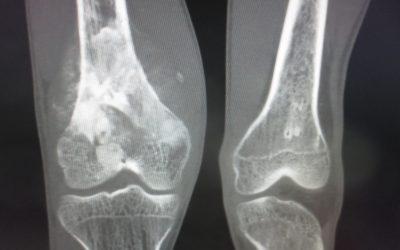 ¿Cuáles son los tumores óseos malignos más comunes?