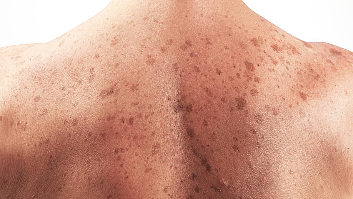 Cáncer de piel: control de lunares y biopsia