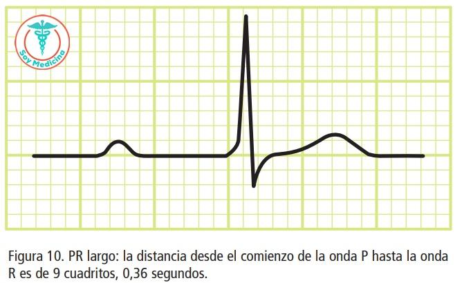 Figura 10. PR largo: la distancia desde el comienzo de la onda P hasta la onda R es de 9 cuadritos, 0,36 segundos.