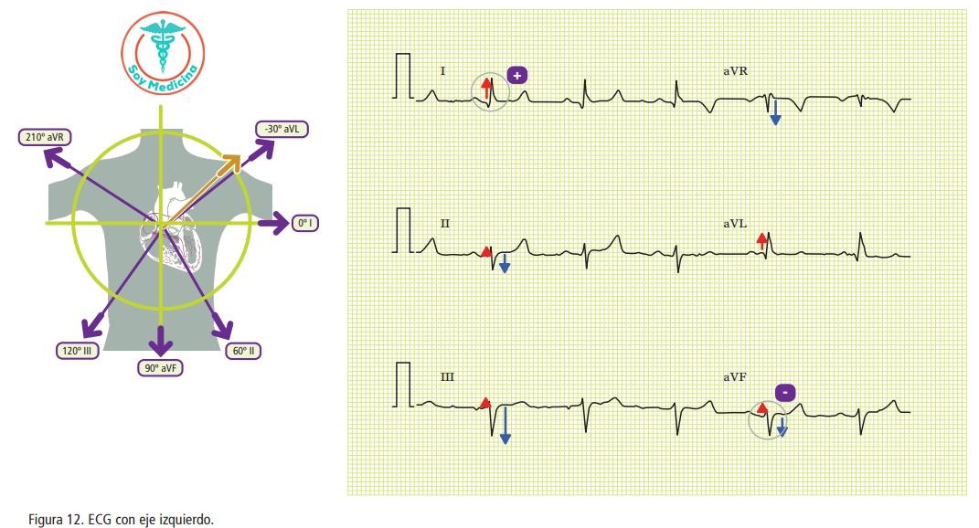 Figura 12. ECG con eje izquierdo.