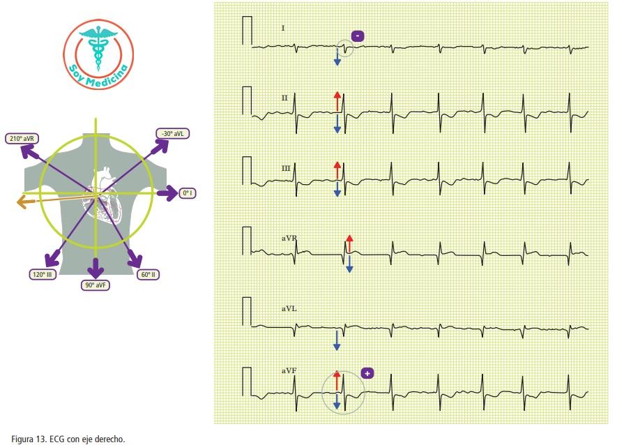 Figura 13. ECG con eje derecho.