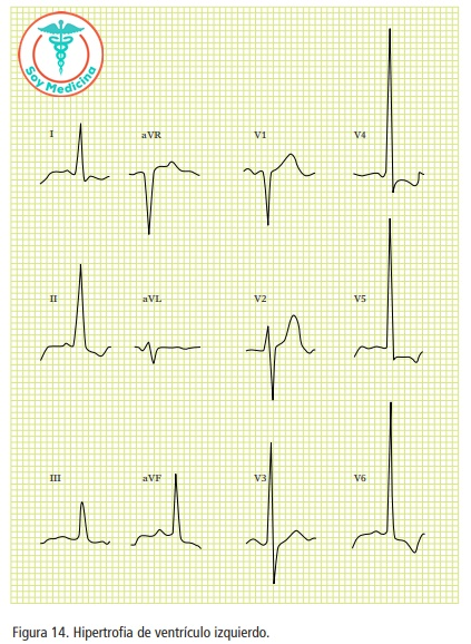 Figura 14. Hipertrofia de ventrículo izquierdo.