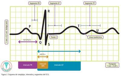 Realización e interpretación básica de un electrocardiograma