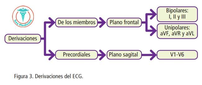 Figura 3. Derivaciones del ECG