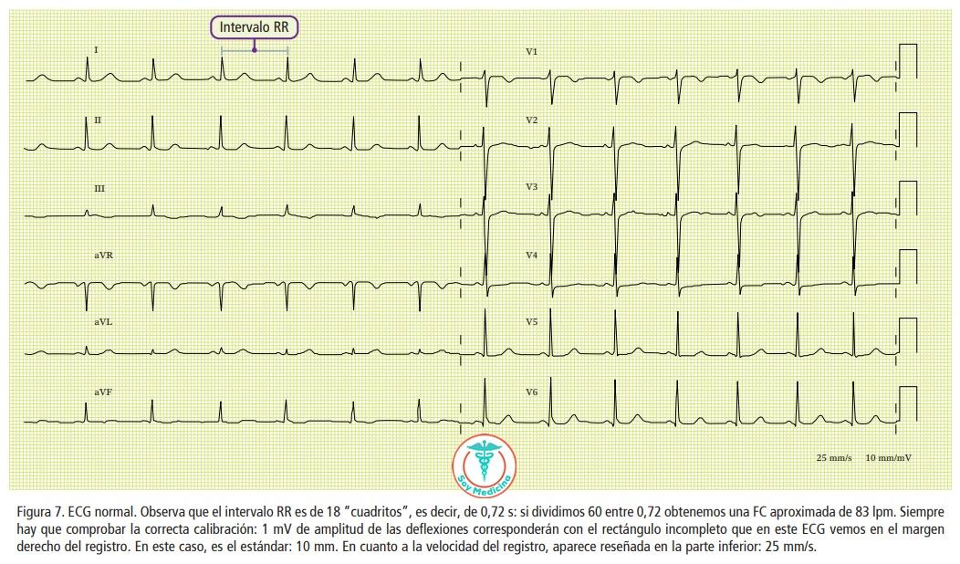 Figura 7. ECG normal.