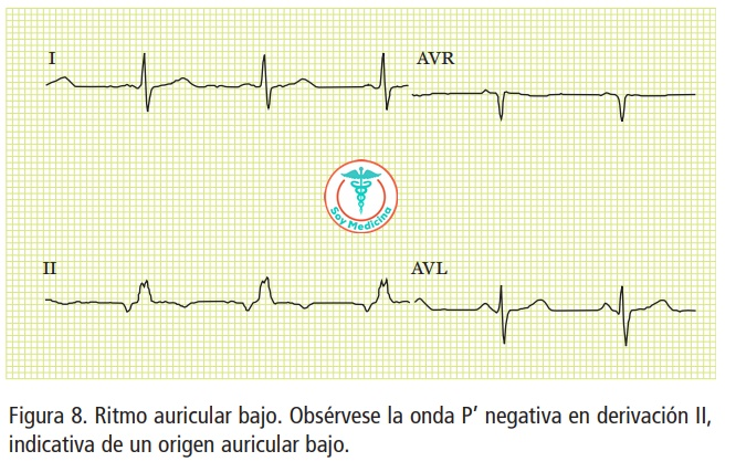 Figura 8. Ritmo auricular bajo. Obsérvese la onda P' negativa en derivación II, indicativa de un origen auricular bajo.