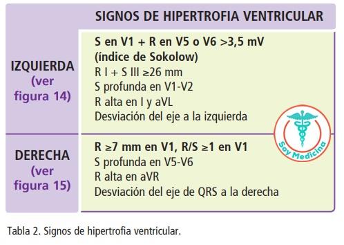 Tabla 2. Signos de hipertrofia ventricular.