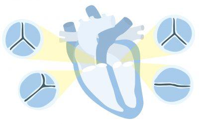 Electrocardiograma: Valvulopatías